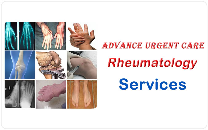 Advance Urgent Care Rheumatology Services
